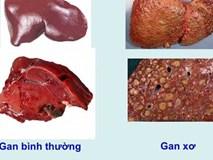 Khi cơ thể cùng lúc xuất hiện 4 dấu hiệu sau, có thể đã là xơ gan giai đoạn cuối