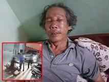 Clip phẫn nộ: Đến thăm con, cụ ông bị bảo vệ chung cư ở Sài Gòn đánh dã man đến gãy sống mũi