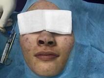 Cô gái hốt hoảng thấy mũi chuyển màu xanh sau nâng mũi, bác sĩ gắp ra