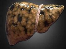 Bệnh gan nhiễm mỡ nguy hiểm như thế nào?