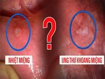 Phân biệt nhiệt miệng và ung thư khoang miệng: Chú ý 3 điểm sẽ tránh hậu quả nghiêm trọng