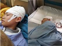 Nam sinh lớp 9 nhập viện điều trị vì bị thầy giáo tát 2 cái