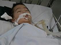 Vụ bé 8 tháng bị điều dưỡng tiêm nhầm thuốc: Cháu bé đang có dấu hiệu chết não