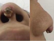 Nâng mũi giá rẻ ở spa, cô gái bị silicon đâm lòi sống mũi