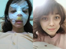 Trải nghiệm kinh hoàng của cô gái trẻ lần đầu nâng mũi sẽ khiến nhiều người nghĩ lại nếu định