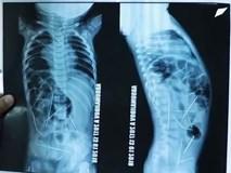 Con sốt cao, tiểu tiện khó khăn, mẹ đưa đến bệnh viện và ngã quỵ khi nhìn thấy hình chụp X-quang