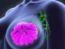 Căn bệnh ung thư có tỉ lệ mắc và tử vong số 1 ở phụ nữ: Những lời khuyên đáng giá cần biết