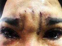 """TP.HCM: Đi treo chân mày bằng chỉ để """"bớt già"""", người phụ nữ bị biến dạng mắt"""