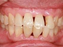 Vệ sinh răng miệng kém có thể gây ra ung thư phổi, ung thư đại tràng