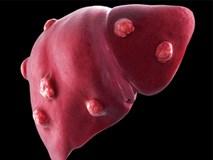 Chuyên gia BV Ung bướu chỉ rõ 4 nhóm người dễ mắc ung thư gan nhất: Biết sớm để đề phòng