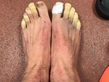 """Sao Ngoại hạng Anh """"khoe"""" đôi bàn chân biến dạng kinh dị"""