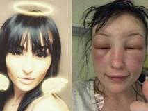 """Tự mình nhuộm tóc ở nhà, người phụ nữ """"tá hoả"""" phát hiện gương mặt biến dạng, thậm chí không thể mở mắt"""