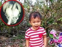 """Bé trai bị đâm xuyên não khi mới 11 ngày tuổi đã đứng vững, đang """"bi bô tập nói"""" và đón Tết thứ ba cùng cha mẹ"""