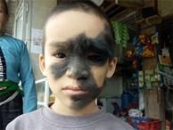Cái Tết trọn vẹn đầu tiên của cậu bé 6 tuổi có khuôn mặt tựa 'người rừng' tại Yên Bái