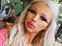 Cô gái dự định cắt bỏ xương sườn để giống búp bê Barbie
