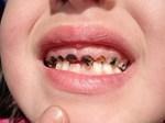 Chuyện gì sẽ xảy ra nếu bạn có một chiếc răng sâu và không chịu chữa trị ngay?-3
