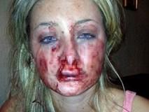Biết bạn trai đã có gia đình, cô gái trẻ nhất quyết chia tay, ai ngờ bị hắn cắn rách mặt