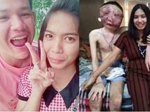 Cảm động tình yêu của cô gái trẻ, kiên quyết ở bên bạn trai dù khối u ác tính đã khiến anh mù lòa, biến dạng hết mặt