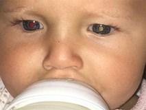Bà mẹ chia sẻ kinh nghiệm nhận biết trẻ bị ung thư mắt qua đôi