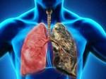 Ung thư phổi là bệnh có tiên lượng xấu: Chuyên gia chỉ rõ những dấu hiệu của bệnh-4