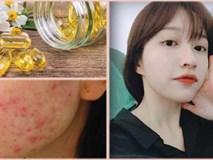 Bôi vitamin E lên mặt để dưỡng da, chị em nhận được kết quả hơn cả mong đợi!