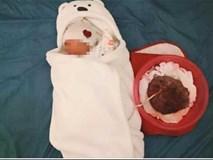 Mẹ bầu ở Hưng Yên gây sốc khi sinh con tại nhà, tự đỡ đẻ và để nhau thai gắn với bé đến 6 ngày sau sinh