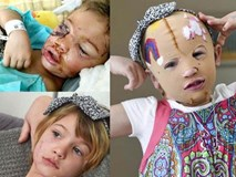 Bị chó cắn đến rách mặt, cô bé 6 tuổi mỗi ngày đều chụp ảnh selfie để học cách chấp nhận diện mạo mới của mình