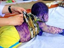 Mẹ không chích ngừa trước sinh, hàng loạt trẻ dưới 3 tháng tuổi mắc bệnh thủy đậu nhập viện