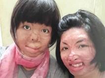 2 người phụ nữ bị chồng tẩm xăng đốt 'nắm tay' nhau tô hồng cuộc sống