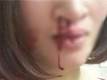 Vừa sảy thai 1 tuần, người vợ này chẳng những không được an ủi mà còn bị chồng tát bật máu trước mặt con nhỏ