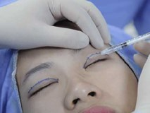 """Giải đáp thắc mắc của hàng ngàn chị em với câu hỏi:""""Cắt mí mắt có hại không?"""""""