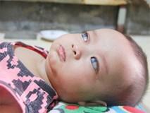 Đôi mắt màu xanh đẹp tựa thiên thần của bé trai 6 tháng tuổi mù lòa đã có cơ hội tìm lại ánh sáng