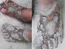 Ngâm chân bằng nước lá, nhiều bệnh nhân tiểu đường hoại tử chân phải cắt bỏ