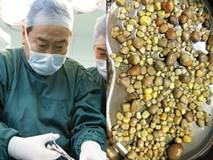 Mổ bụng bệnh nhân, bác sĩ kinh hoàng khi nhìn thấy những thứ này mà nguyên nhân là do ăn đậu phụ