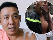 Anh lính cứu hỏa bị bỏng tuột da tay: 'Máy bơm trục trặc phát nổ lớn, tôi đưa tay lên đỡ thì bị bỏng'