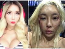 Nữ DJ gợi cảm đăng hình ảnh tàn tạ, rớm máu và câu chuyện đau lòng phía sau