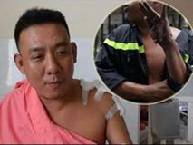 Cháy chung cư Carina: Anh lính cứu hỏa có bàn tay bị cháy tuột da kể lại sự việc