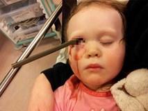 Hớn hở chạy khoe bố mẹ bức tranh mới vẽ, ngờ đâu tai họa ập xuống suýt lấy mạng cô bé 2 tuổi