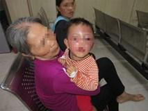 Nghi vấn bé trai 2 tuổi bị cha dượng bạo hành khiến mặt mũi sưng phù, bầm tím