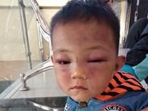 Tạm giữ bố dượng đánh con riêng 2 tuổi của vợ đến mức phải nhập viện