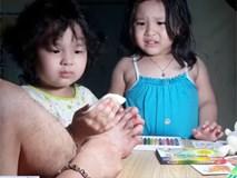 Clip '2 con gái vừa khám vết thương cho bố vừa khóc nhè' bất ngờ được share dữ dội trên MXH