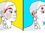 8 thực phẩm chữa đau nửa đầu hiệu quả hơn cả thuốc-9