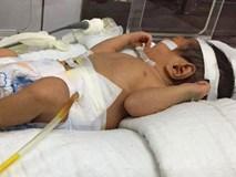 Hiếm gặp: Cháu bé sơ sinh 2 ngày tuổi ở Lào Cai bị vỡ dạ dày