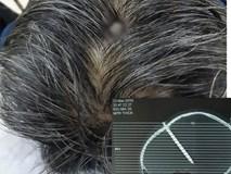 Báo Anh đưa tin bệnh nhân Việt không chịu đi khám dù đinh 8 cm xuyên vào đầu