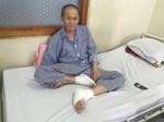 Bé trai 1 tuổi tắm xong đột ngột bị mù, đưa đến bệnh viện thì bác sĩ xác định nguyên nhân đến từ sai lầm của bà nội-4