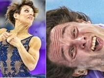 """Những bức ảnh mà các nghệ sĩ trượt băng muốn """"giấu nhẹm"""" đi"""