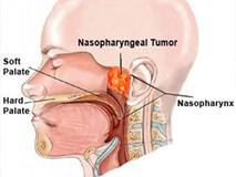 Nhớ các dấu hiệu ung thư vòm họng giai đoạn đầu, cơ hội sống sót lên tới 72%