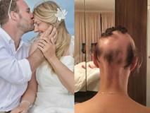 Người phụ nữ bị rụng tóc kinh hoàng, đầu trắng trơn chỉ vì quá lo lắng cho đám cưới