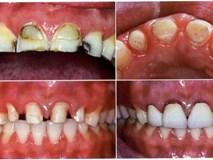 Bác sĩ BV Răng hàm mặt Trung ương chỉ rõ 3 biến chứng đáng sợ của răng sứ thẩm mỹ
