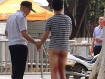 Tai nạn ngớ ngẩn: Chàng trai tự cắt